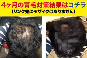 半年の育毛結果mozaic